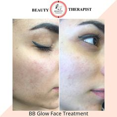15 Best BB Glow images in 2019