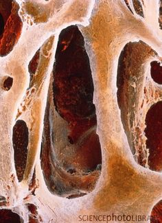 Spongy bone in osteoporosis