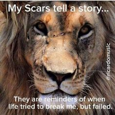 My scars tell a story...