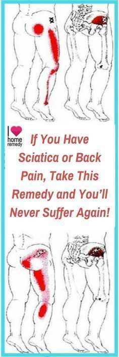 Sciatica is a medical condition characterized by pain going down the leg from the lower back. This pain may go down the back, outside, or front of the leg. Typically, symptoms are only on one side …