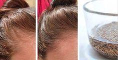 O chão da sua casa sempre tem fios de cabelo espalhados?A queda de cabelo é um problema que atinge principalmente as mulheres.As causas são muitas, como carência de vitaminas, efeitos colaterais de produtos químicos, alterações hormonais e até mesmo o estresse.
