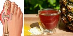 The gout is an issue that is seen in people who have digestion problems since the uric acid makes arthritis in the small bones and joints in the feet. Other gout effects are swelling and Colon Cleanse Detox, Natural Colon Cleanse, Gout Remedies, Natural Health Remedies, Gota A Gota, Types Of Arthritis, Uric Acid, Foods To Avoid, Rezepte