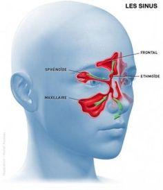 Pour soigner une sinusite, en inhalation : Huile essentielle de lavande aspic : 10 gouttes (antivirale, antibactérienne, expectorante) Huile essentielle de menthe poivrée : 15 goutte...