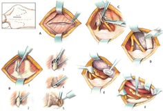 Surgical Treatment- Rib removal for the treatment of Thoracic Outlet Syndrome