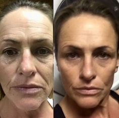 Non-Surgical Facelifts: One Can Execute Face Lifts Without Surgery Applying Facial Exercises