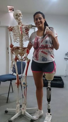 Pin By Disabledplanet On Female Sak Amputee Pinterest Legs