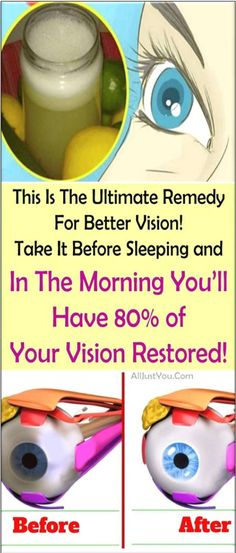 This Is The Ultimate Remedy For Better Vision. Take It Before Sleeping & In The Morning. You'll Have 80% Of Your Vision Restored…!!!