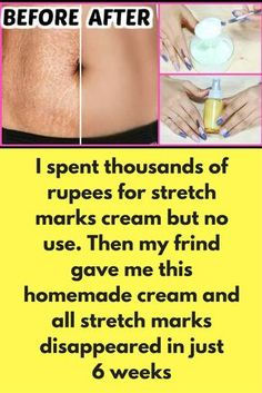 I spent thousands of rupees for stretch marks cream but no use. Then my frind gave me this homemade cream and all stretch marks disappeared in just 6 weeks You will need 3 spoon aloe vera gel 3 spoon castor oil 2 spoon Glycerin 3 tsp retino-A cream 4 tablets of vitamin C 4 Vitmain E capsule Mix all above ingredients in clean bowl Wash affected area and apply this cream Make sure you apply it before going to bed This is one of …