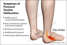 Symptoms of Peroneal Tendon Subluxation or Dislocation Sore Ankle, Ankle Pain, Leg Pain, Foot Pain, Ankle Sprain Recovery, Dislocated Ankle, Sprained Ankle, Ankle Ligaments, Ligament Injury