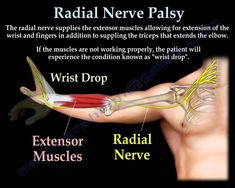 Radial Nerve Palsy, injury -  WRIST DROP . Everything You Need To Know -...