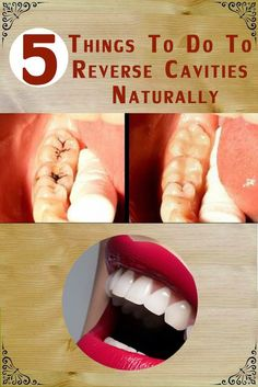 DIY - Natural Teeth Whitening Ideas: 5 things to do to Reverse Cavities Naturally Health And Beauty, Health And Wellness, Health Tips, Health Fitness, Oral Health, Health Benefits, Teeth Health, Health Remedies, Home Remedies