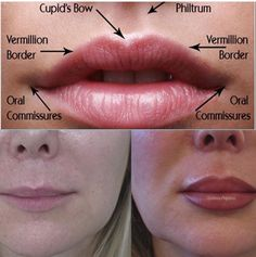 Perfecting your lips is an art.⁣ You can expect beautiful natural results from our lip⁣ fillers, wrinkle relaxing treatment, and dermal… fillers kiss natural shape women lipstick Dermal Fillers Lips, Botox Fillers, Lip Fillers, Lip Injections, Lip Plumper, Relleno Facial, Hyaluronic Acid Fillers, Facial Anatomy, Facial Aesthetics