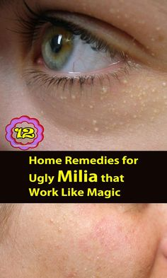 Milia also called milk spot on skin, these tiny facial white bumps can be handled with some home-based remedies, 12 home remedies for ugly #Milia that work like magic
