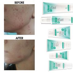 Nutrimetics Clear Before and After