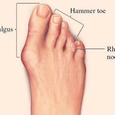 how to get rid of hammer toe pain