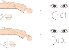 Right PSC heavy cupula. Right Dix-Hallpike: Up beating and counterclockwise nystagmus (B1), which stops with the head rotated from 45° to 55° toward the left side, keeping the head extended 20° over the bed: Neutral and reversal position. The nystagmus reverses its beating direction due to further left head rotation becoming down beating, clockwise (B2). This latter nystagmus was less intense than the previous counterclockwise one. The nystagmus was always persistent in all the evocative…