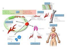 cancer metastasis -