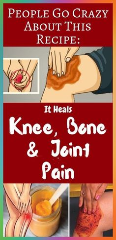 Watch This Video Proven Homemade Remedies for Arthritis and Joint Pain Ideas. Staggering Homemade Remedies for Arthritis and Joint Pain Ideas. Natural Health Remedies, Natural Cures, Home Remedies, Natural Healing, Herbal Remedies, Natural Treatments, Matcha Benefits, Coconut Health Benefits, Acupuncture