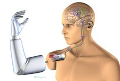 Max Ortiz Catalan, a student at Chalmers University of Technology in Sweden, is now designing the worlds first implantable robotic arm controlled by thoughts within the frameworks of the OPRA Implant System project. Robotic Prosthetics, Chalmers University, Muscle And Nerve, Medical Design, Robot Arm, Cool Tech, Science And Technology, Medical Technology, Physical Therapy