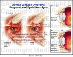stevens johnson syndrome - Google Search