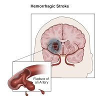 Hemorrhagic strokes occur when a blood vessel that supplies the brain ruptures and bleeds. When an artery bleeds into the brain, brain cells and tissues do not receive oxygen and nutrients. In addition, pressure builds up in surrounding tissues and irritation and swelling occur. About 13 percent of strokes are caused by hemorrhage. Hemorrhagic strokes are divided into two main categories, including the following: