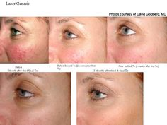 Intense Pulsed Light Rosacea treatment (IPL) may well be one of your best options - for certain types of rosacea. While being a relatively new form of laser treatment Acne Rosacea, Skin Treatments, Vein Removal, Intense Pulsed Light, Skin Resurfacing, Sensitive Skin Care, Be Natural