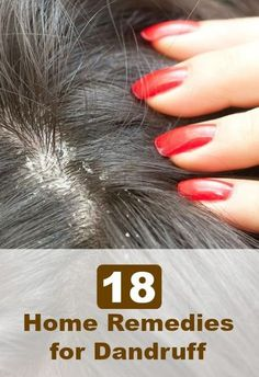 Dandruff is a common chronic skin condition that is characterized by a flaky scalp. Here are a few home remedies to get rid of dandruff. Read on & know Home Remedies For Dandruff, Hair Remedies, Dry Scalp Remedy, Itchy Scalp, Natural Hair Care, Natural Hair Styles, Beauty Care, Beauty Hacks, Beauty Tips
