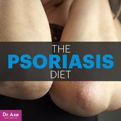 Psoriasis diet - Dr. Axe