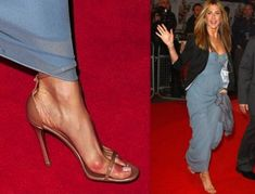 celebrity bunions - Google Search