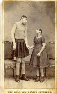 """1885 """"The Wild Australian Children"""" two people born with microcephaly, this condition makes a persons features appear primitive and behave in a childlike manner. Circus acts with these characteristics were referred to as """"pinheads"""" Old Circus, Vintage Circus, Circus Acts, Cthulhu, Sideshow Freaks, Human Oddities, Circus Performers, Bizarre, Weird And Wonderful"""