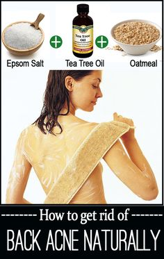 18 Home Remedies for Back Acne Back Acne Remedies, Natural Acne Remedies, Herbal Remedies, Health Remedies, Pimples Remedies, Natural Cures, Scar Remedies, Natural Healing, Back Acne Treatment