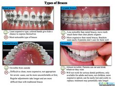 Four types of braces! Dental Humor, Dental Hygiene, Dental Health, Oral Health, Dental Assistant, Dental Braces, Teeth Braces, Cute Braces Colors, Types Of Braces