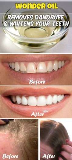 Wonder oil that removes dandruff and whitens your teeth.