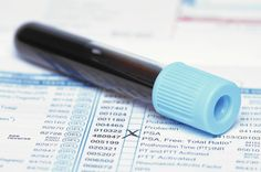 Early prostate cancer diagnoses on the decline - Chicago Tribune