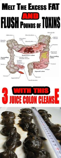 Take The 3 Juice Colon Cleanse And Flush Pounds Of Toxins From Your Body