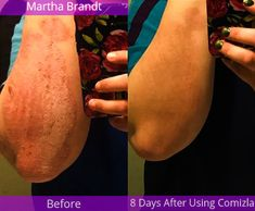 Comizla Psoriasis Cream – Stem Cell Therapy For Psoriasis Psoriasis Cream, Psoriasis Skin, Stem Cell Therapy, Normal Skin, New Skin, Stem Cells, Clear Skin, Healthy Skin, Home Made