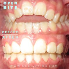 Before & After: Open Bite| The Braces Blog | Northern Colorado Orthodontics Before & After Braces Case treated by orthodontist Dr. Jill Mioduski