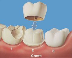 If you need a dental ceramic crown Westport based EDGW are the experts to come see. Dental caps can restore your decayed or chipped tooth. Implant Dentistry, Cosmetic Dentistry, Teeth Implants, Dental Implants, Dental Hygienist, Dental Health, Dental Care, Oral Health, Dental Fluorosis
