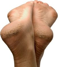 How To Treat Cracked Heels : 3 Powerful  Home Remedies