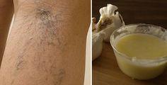 Vene varicose: come sbarazzarsene con aceto di mele e aglio