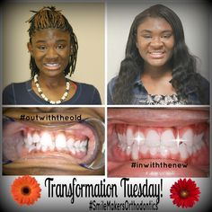 Transformation Tuesdays are great for showing what beautiful work Dr. Burton and our hard workers do here at SmileMakers Orthodontics! Hard Workers, Transformation Tuesday, Orthodontics, Beautiful Smile, Braces, Fun, Suspenders, Dental Braces, Hilarious