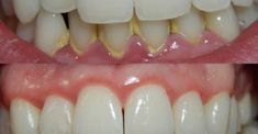 Nowadays, dental implants are extremely popular and useful, especially when we need to fill a gap in the mouth cavity due to missing teeth. The dental experts have made an incredible discovery, whi… Get Whiter Teeth, Teeth Dentist, Body Hacks, Japanese Face, White Teeth, Dental Implants, Oral Hygiene, Diy Beauty, Healthy Life