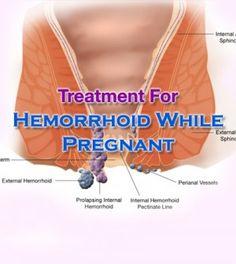 #Effective Methods For #Hemorrhoid #Treatment While #Pregnant -   #HemorrhoidTreatment #HemorrhoidWhilePregnant #Pregnancy #HemorrhoidTreatmentWhilePregnant #TreatmentForHemorrhiod