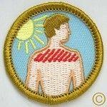 Sunburn demerit badge
