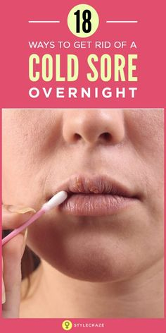 how to clear up a cold sore overnight