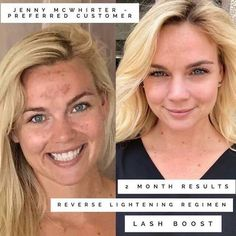 What's your current skincare regimen doing for you? Interested in trying something new? I can help! We have the #1 skincare brand in the US available RIGHT NOW to help meet WHATEVER your skincare needs may be. Rodan + Fields can provide jaw-dropping results if used consistently. Take my skin quiz to find your regimen, order it online, it ships to your door and your satisfaction is guaranteed!!! #premiumskincare #multimedtherapy #clinicallyproven