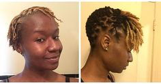 What Ugly Phase? This Journey Has Helped Me Love Myself Even More! What Ugly Phase? This Journey Has Helped Me Love Myself Even More! Short Dread Styles, Dreads Styles For Women, Short Dreadlocks Styles, Dreadlock Styles, Dreads Short Hair, Short Locs Hairstyles, Dreads Girl, Pretty Hairstyles, Girl Hairstyles