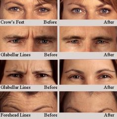 leipzig Visit www. to find out how BOTOX can help you look younger. Visit www. to find out how BOTOX can help you look younger. Botox Fillers, Dermal Fillers, Lip Fillers, Facial Fillers, Face Symmetry, Botox Results, Botox Training, Facial Esthetics, Botox Forehead