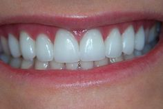 you for my perfectly healthy and straight teeth now i can laugh and smile all the time feeling secure and confident Veneers Teeth, Dental Veneers, Beautiful Teeth, Teeth Shape, Perfect Teeth, Tooth Sensitivity, Dental Cosmetics, Teeth Bleaching, Best Skin Care Routine