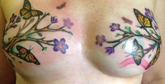 Tattoos for breast cancer survivors who have had a mastectomy or suffer from breast reconstruction scars. Two types of Tattoos Nipples Tattooing and artistic. Cancer Survivor Tattoo, Breast Cancer Tattoos, Breast Cancer Survivor, Scar Tattoo, Cover Tattoo, Underboob Tattoo, Sexy Tattoos, Body Art Tattoos, Tatoos